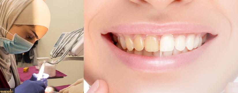 د نهيل اسماعيل تصبغ الأسنان Golden Apple Dental Center الدكتور محمد الشيخ